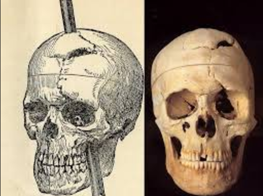 craneo phineas gage